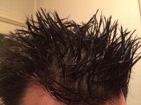 头发检测甲基苯丙胺和海洛因2种毒品