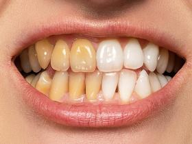 吸毒人员牙齿发黑的相关口腔疾病